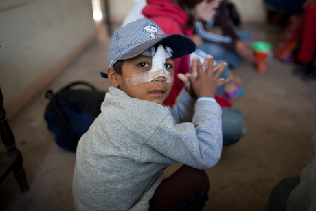 Boy with bandages. Quito, Ecuador. 2006.